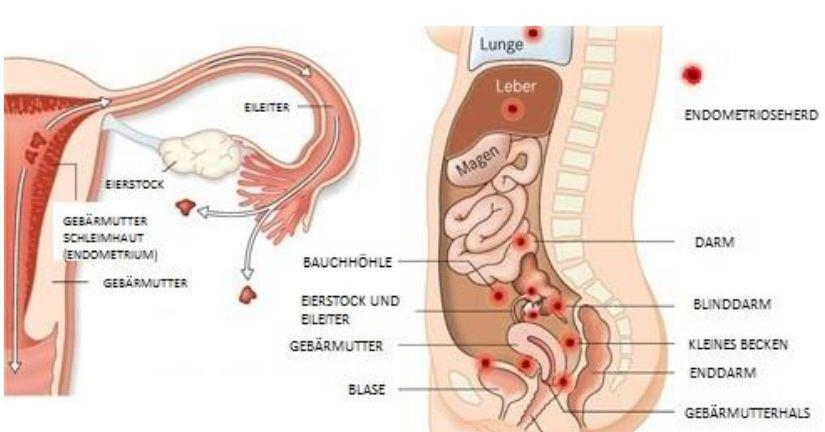 Endometriose Darstellung