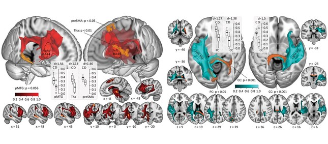 Tractograaphy results with seed in Brodmann area 44 (BA44) (left) and in Heschl's Gyrus (right). Average tractograms of all participants are displayed on the standard T1 MNI-brain. Seed ROIs are marked with dashed lines. Significant differences in connectivity between groups are depicted in orange. Color coding in slices ranges from 0 (no connectivity with seed ROI) to 1 (maximal connectivity). Tracts are shown at a threshold of 0.2, which was also used for statistical testing. For purposes of clarity, the tracts in the 3D images are presented at a threshold of 0.3. 3D images and horizontal slices are viewed from above and coronal slices from behind with left in the pictures representing left in the brain. Boxplots indicate mean logarithmized connectivity values of controls (C) and deafs (D) in areas with significant connectivity differences; Cohen's d was calculated post hoc. P-values are FWE-corrected at cluster level. All coordinates are given in MNI-space. Figure from Fink et al. (https://doi.org/10.1093/cercor/bhz128) licensed under CC BY 4.0