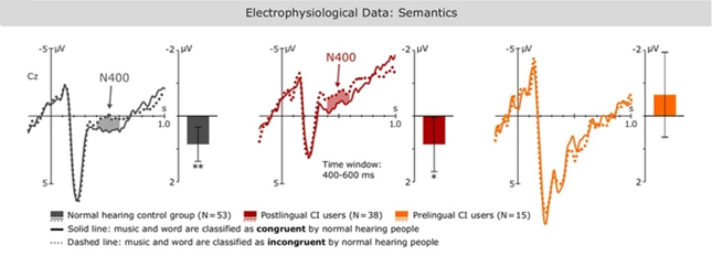 Data shows event-related potentials for the processing of musical semantics on a representative electrode (Cz). Musical excerpts were followed by a visually presented target words which were either congruent or incongruent to the musical pieces.  Significant differences between conditions are marked with shaded areas in the waveforms. Postlingually deafened adults display a N400 effect similar to matched normal hearing controls, indicating that the processing of musical semantic content can be restored in CI users with previous hearing experience. By contrast, prelingually deafened participants, who received a CI as adults, did not show a N400 effect. Figure from Bruns et al. (https://doi.org/10.1038/srep32026) licensed under CC BY 4.0