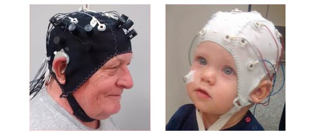 Cochlear Implant and Neurocognition