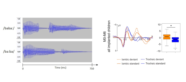 The Perception of Stress Pattern in Young Cochlear Implanted Children