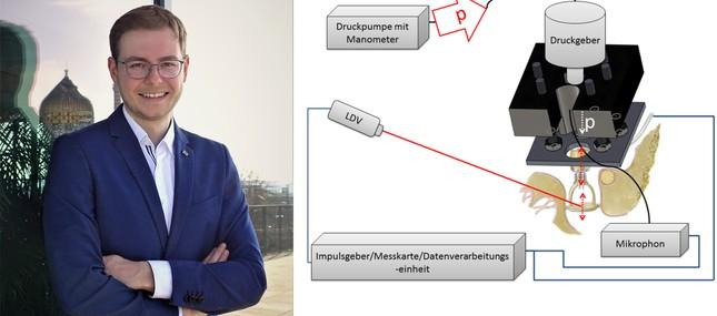 Dr. Christoph Müller erhält den Dissertationspreis der Deutschen Gesellschaft für Hals-Nasen-Ohren-Heilkunde, Kopf- und Hals-Chirurgie e.V.