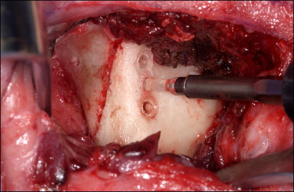 Osteosynthesematerialien Abb. 5