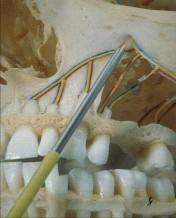 Kryochirurgie 2-links
