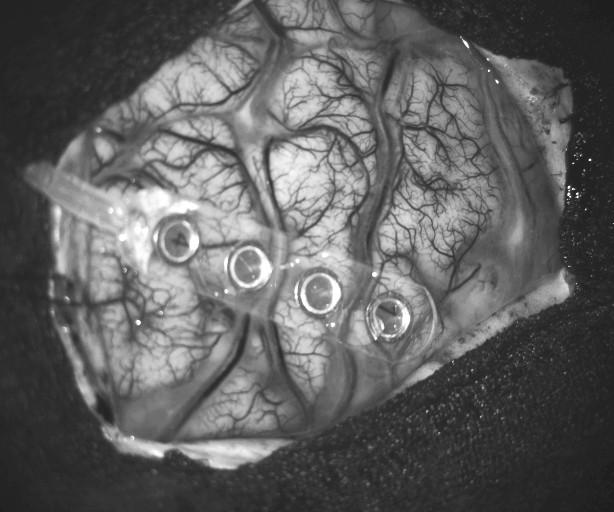 NeuroPhysioMonitoring