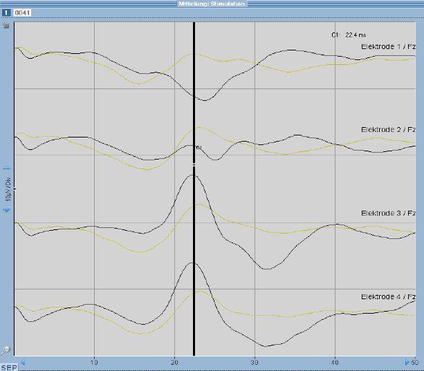 Elektrophysiologie1