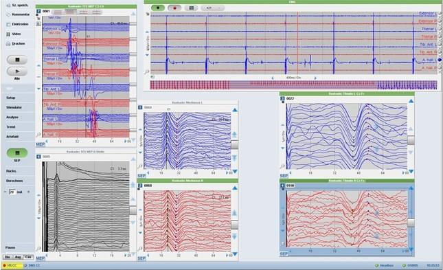 Elektrophysiologie2