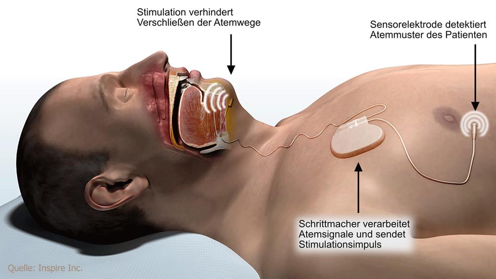 Hypoglossusstimulator