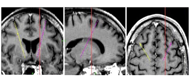 Funktionelle Neurochirurgie