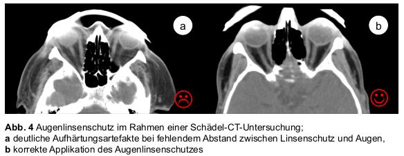 Augenlinsenschutz im Rahmen einer CT-Schädeluntersuchung.