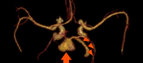 CT_allg_Ameurysma.png