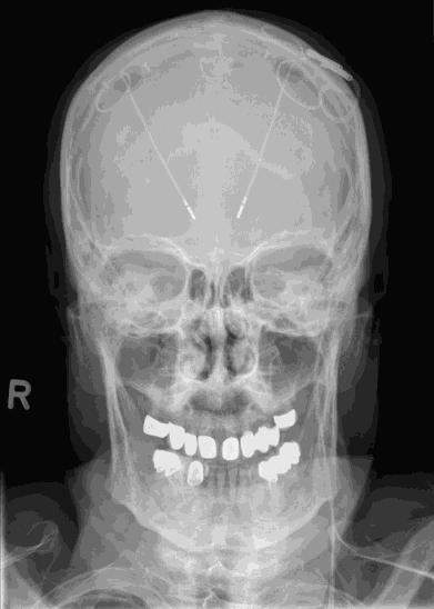 Röntgen_Abb2a.png