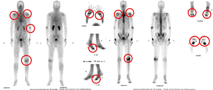 Arthritis-und-Arthrose-klein1.png