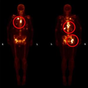 Knochenmetastasen-bei-Brustkrebs-300x300.png
