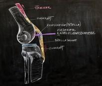 Die Zugkraft des kräftigen Kniestreckers wird über die Kniescheibe und die Patellasehne umgeleitet. Dadurch wirkt bei Beugung unter Last (z.B. Steigen einer hohen Treppenstufe) das bis zu 8-fache des Körpergewichts auf die Kniescheibe.