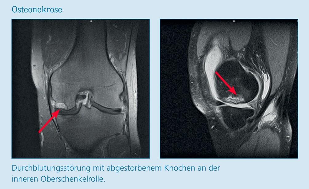 Osteonekrose.jpg