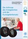 OUC_Brosch_Arthrose-Kniegelenk-Kunstgelenkersatz_Titelbild_200px.jpg