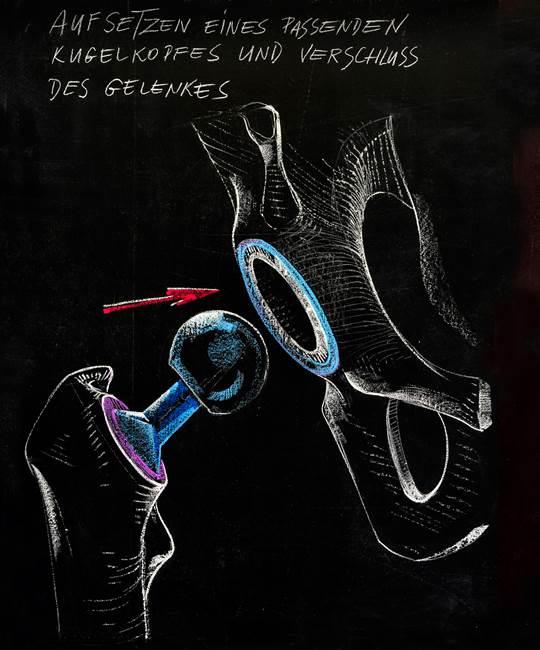 Aufsetzen eines Kugelkopfes auf den Schafthals der Prothese