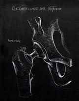 Auskugelung der Prothese
