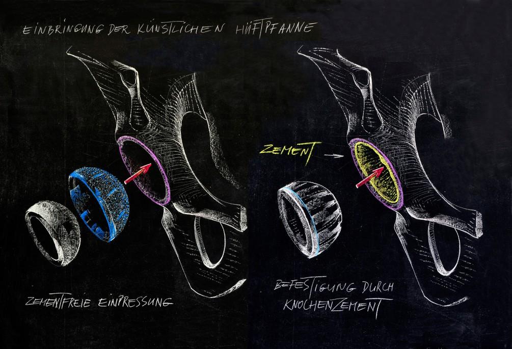 Befestigung von Prothesenpfanne