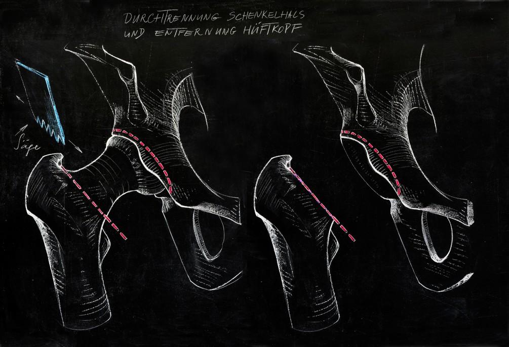 Durchtrennung des Schenkelhalses und Entnahme des Hüftkopfes