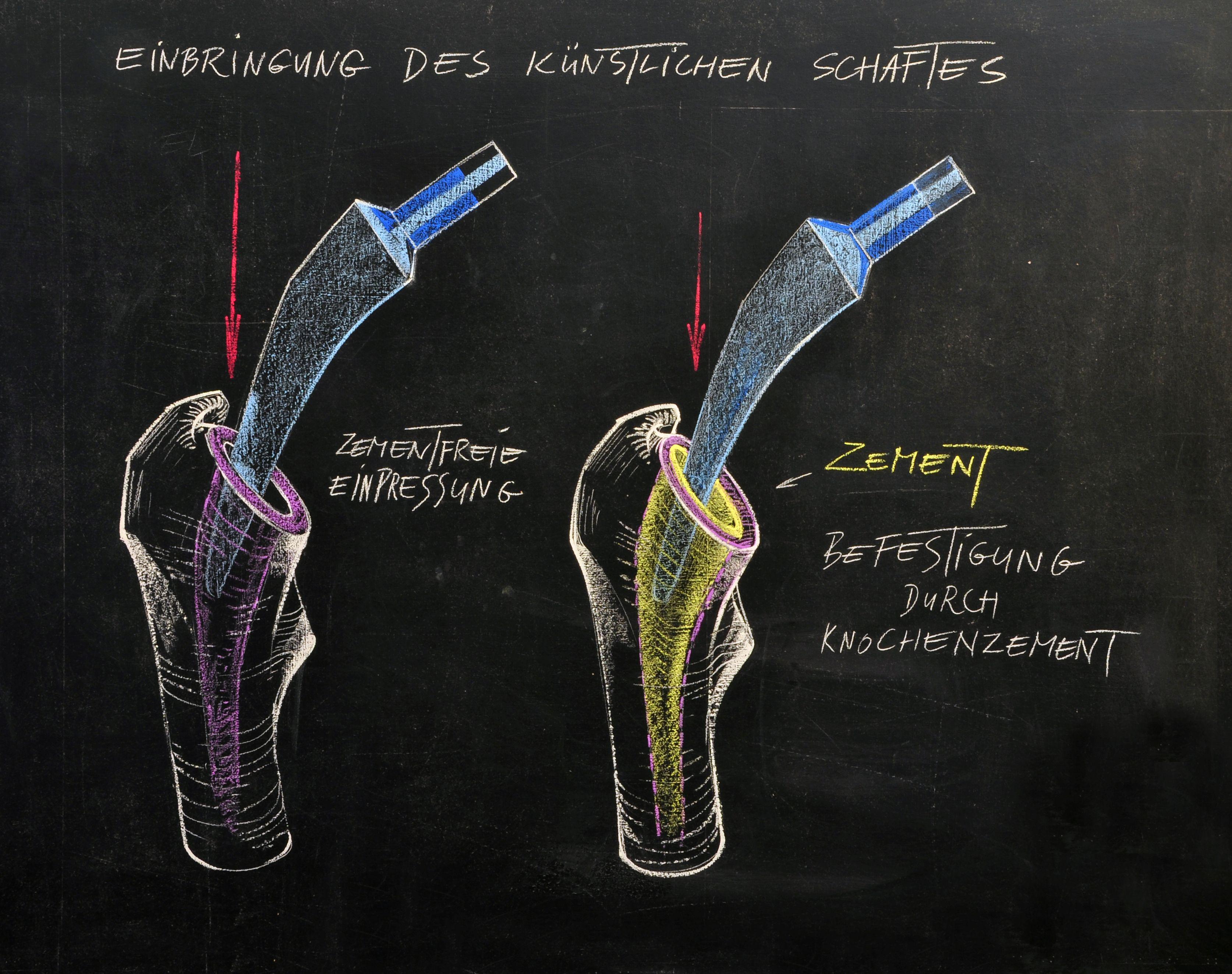 Einpressen eines zementfreien Schaftes (linke Bildhälfte) oder eines zementierten Schaftes unter Befestigung mit Knochenzement (re. Bildhälfte)