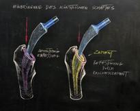 """Befestigung von Prothesenschaft im Knochen des Patienten: Links ist die """"zementfreie"""" Einpressung und rechts ist die """"zementierte"""" Einbringung mittels (gelb markiertem) Knochenzement dargestellt"""