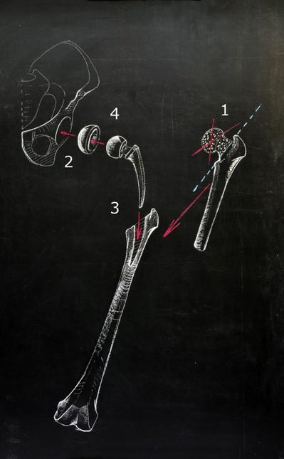 Prinzip des künstlichen Hüftgelenkersatzes mit Entfernung des Hüftkopfes (1), Einbringen von neuer Hüftpfanne (2) und Prothesenstiel in den Oberschenkel-Markraum (3). Ein künstlicher Hüftkopf vervollständigt das neue Gelenk (4)