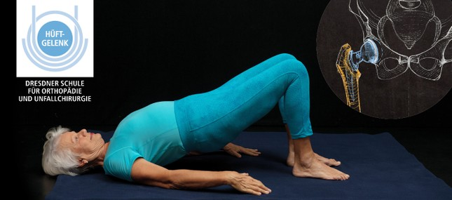 Selbstgestaltete Bewegungstherapie bei Hüftendoprothese