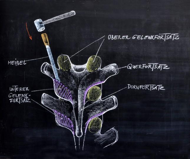 2.Meißelosteotomie-Obenansicht.JPG