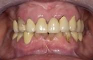 parodontitis1_klein