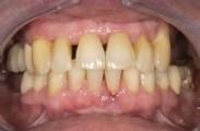 parodontitis2_klein