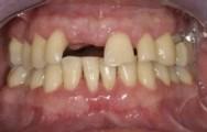 parodontitis3_klein