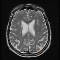 MRT_Gehirn