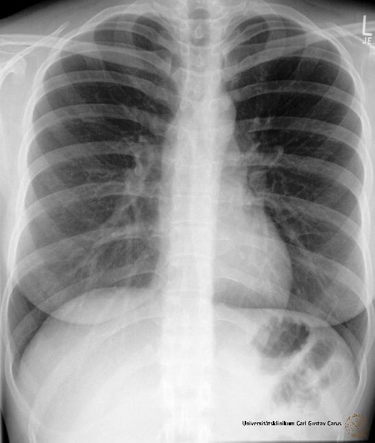 Röntgen_Brustkorb