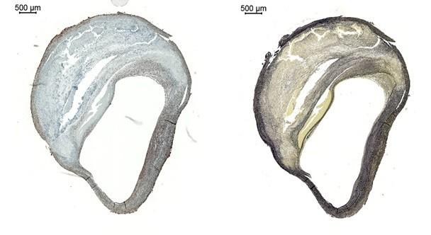Arteriosclerotic plaque