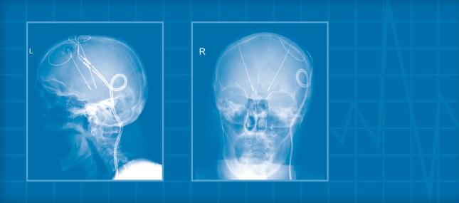 Innovative Behandlung von Demenz und Parkinson
