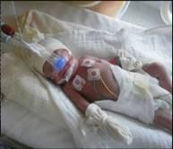 Pädiatrische Intensivpflege1