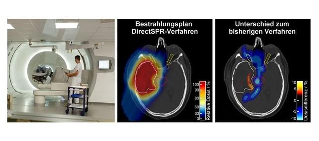 Neues Verfahren erhöht Präzision der Dresdner Protonentherapie
