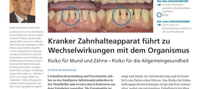 16. Oktober 2012: Entzündungen im Mund sorgen bei Diabetikern für zusätzliche Risiken